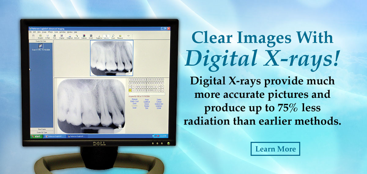 Dental Xrays Bowling Green KY